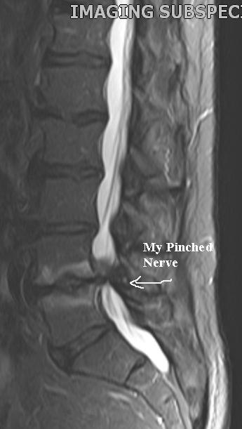 Spine MRI 4_16_55.jpg